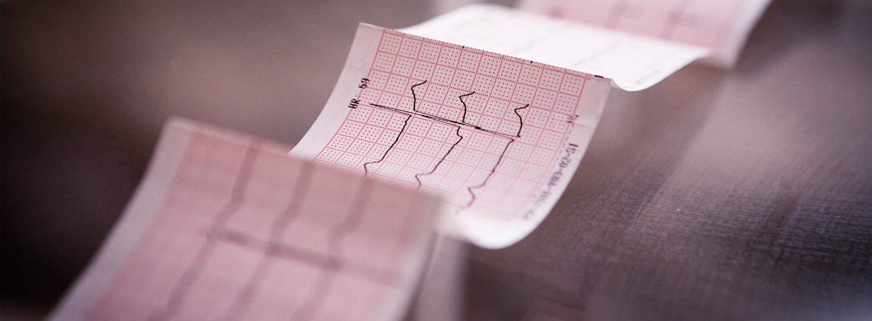 EKG Papier