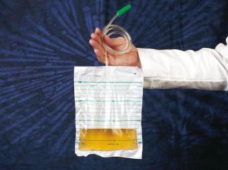Urinbeutel 1,5l Schlauch 90 cm, 1x10 Stück