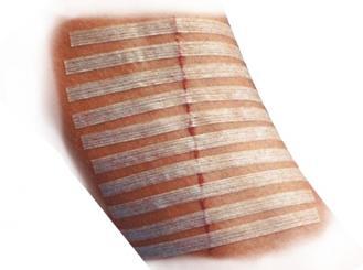 3M Steri-Strip Wundverschlussstreifen, 6 x 38 mm 12x6 Stück